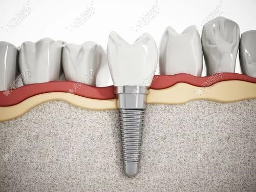 糖尿病人做种植牙安全吗