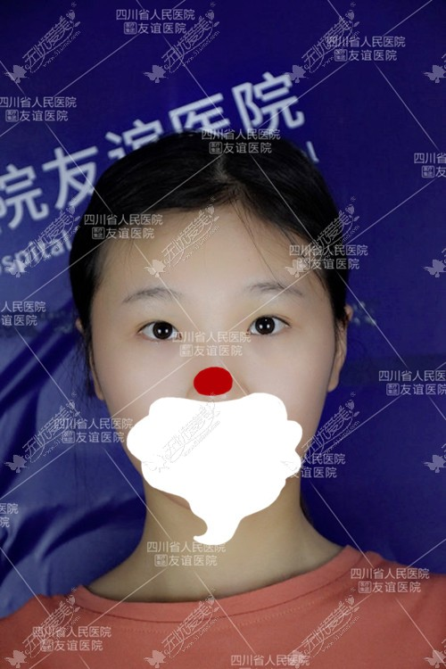 反正我找李萍医生做的全切双眼皮3个月了也没变成肉条眼