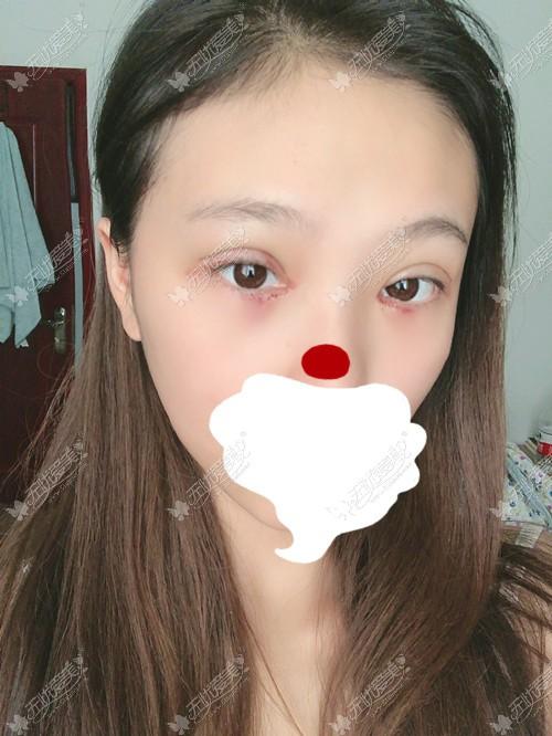 恢复期眼睛不是特别红肿