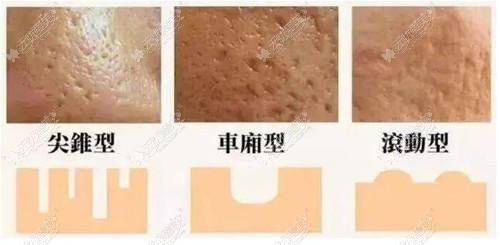 不同类型痘痘的区别