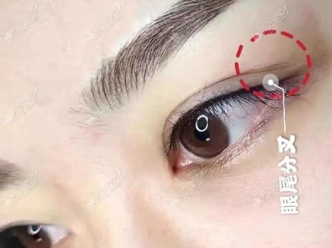 全切双眼皮术后眼尾分叉图片