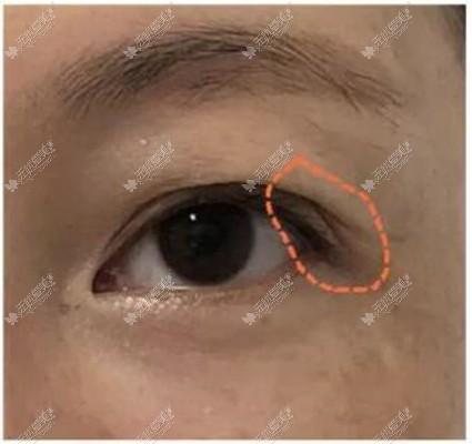 双眼皮形态设计不好导致的分叉