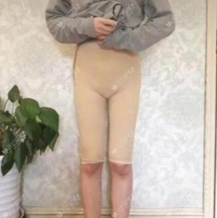 大腿吸脂穿多久束身裤