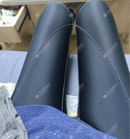 大腿吸脂恢复期穿束身裤图片