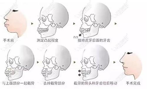 骨性龅牙正颌手术过程