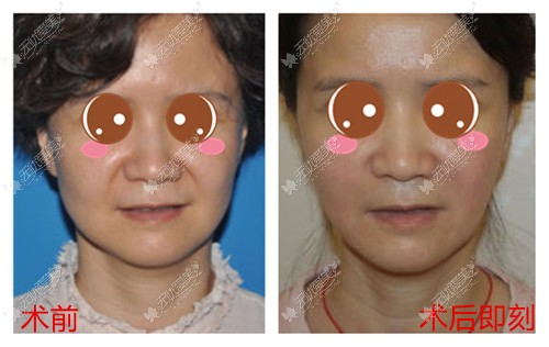 小切口拉皮手术案例