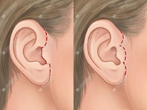 耳前拉皮手术切口位置