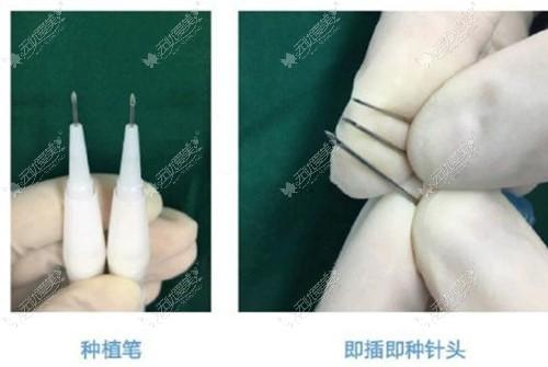 微针植发用的种植笔