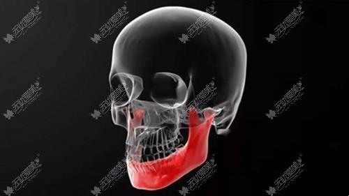 假体垫下巴后会有骨吸收的问题