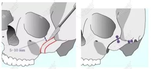 颧骨内推手术对骨头折断内推
