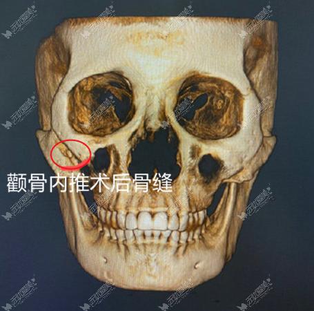 颧骨内推术后骨缝图片