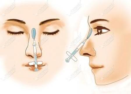 5分钟生物肋骨隆鼻注射后鼻子会变宽吗
