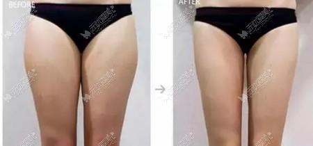 优立塑瘦腿效果