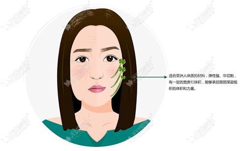 人工韧带提升面部原理