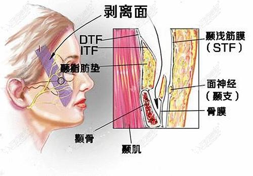 pst面部提升手术需要进行剥离