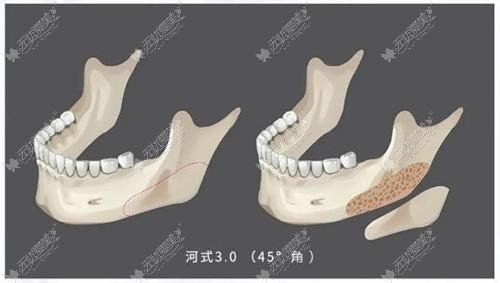 河东镐第三代下颌角截骨手术原理