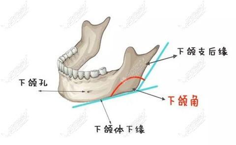 第三代下颌角磨骨可以避免出现磨骨多造成下垂