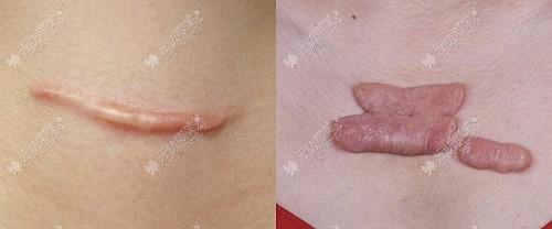增生性疤痕图片