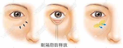 眶隔脂肪释放去眼袋原理