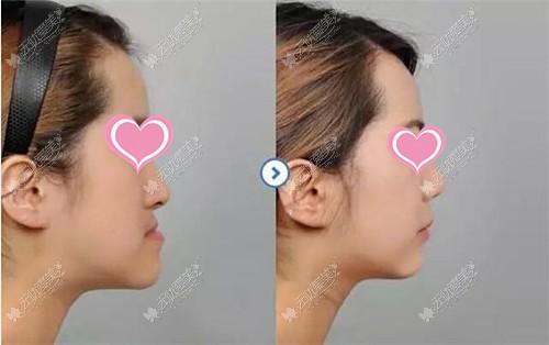 骨性地包天做正颌手术前后对比图