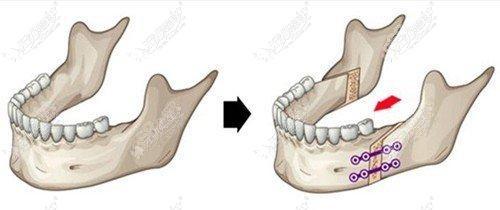 地包天做正颌手术矫正讲解