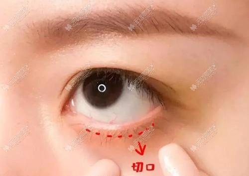 眼袋没做好,就是外切眼袋后缝合处有疙瘩,可以修复吗
