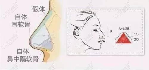 假体隆鼻后出现增生