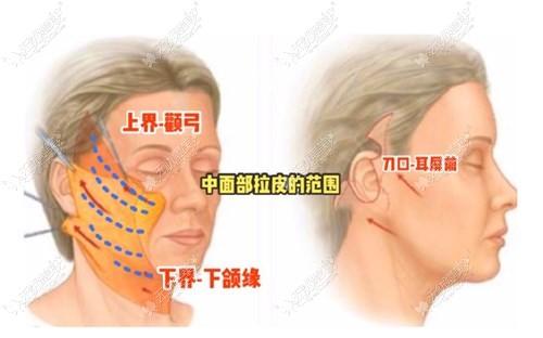 天津维美拉皮手术优势