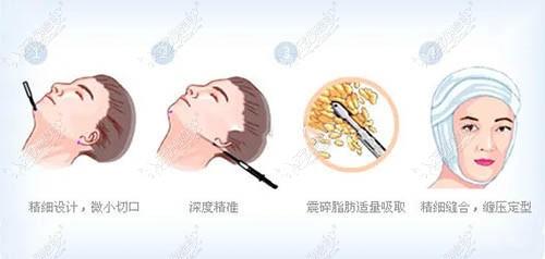 下颌缘吸脂过程图