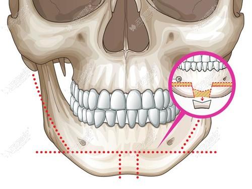 下巴t字型截骨手术过程