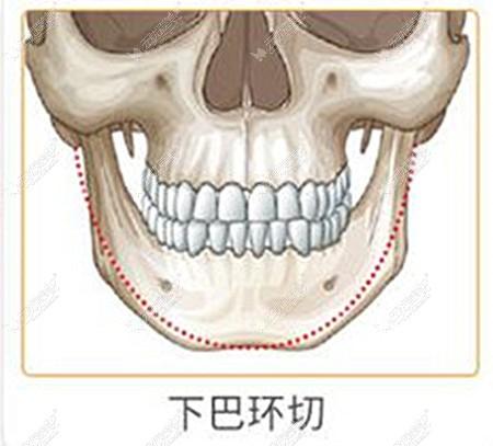 下巴u型环切手术过程