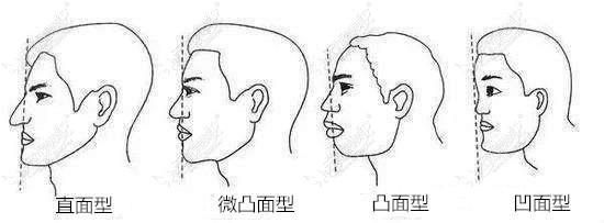 鼻基底凹陷各程度