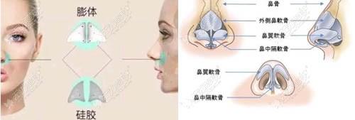 假体填充鼻基底