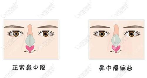 说鼻中隔偏曲千万别做手术,是担心修复需要取出假体吗