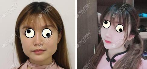 方脸做下颌角磨骨手术1年前后对比照片,原来的方脸变圆脸了