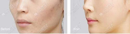 单从维持时间来看面部凹陷自体脂肪和玻尿酸哪个填充好