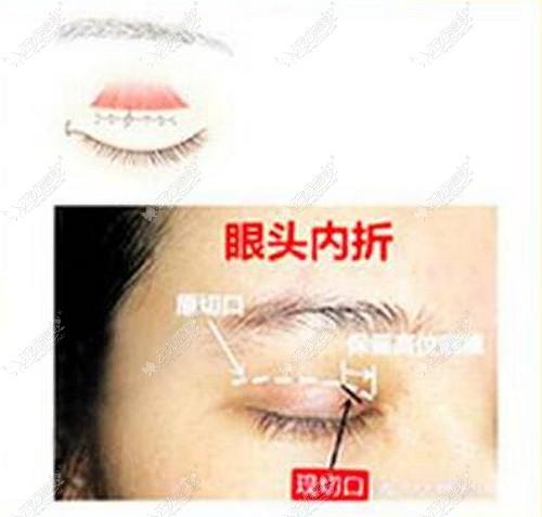 王海平做眼睛修复怎么样